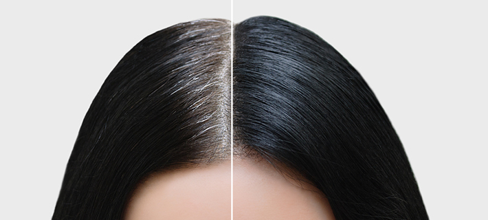 How much Hair Density a Hair Transplant can provide?
