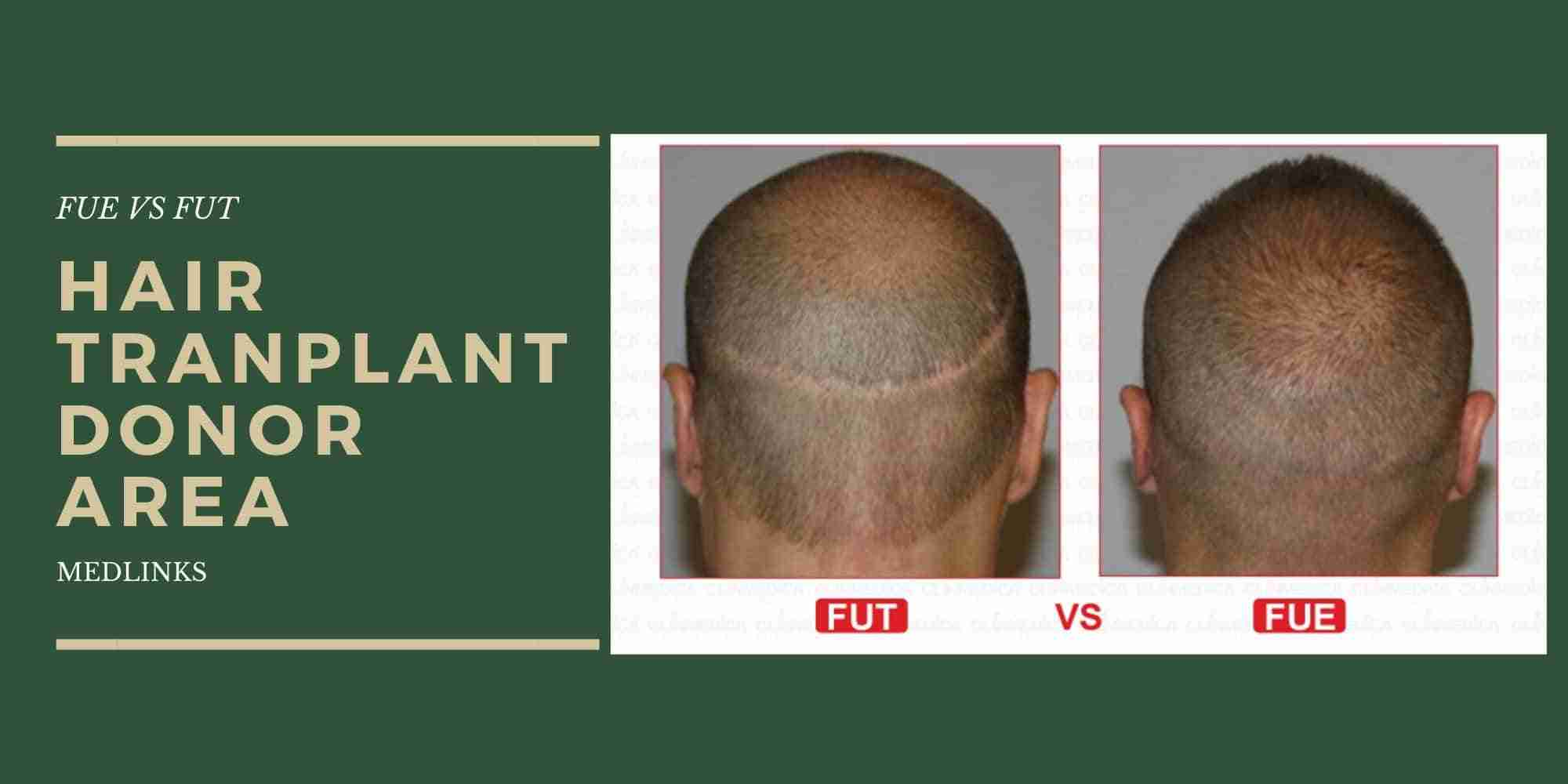 How Important Donor Areas for Hair Transplant?