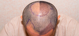 What does Redness after Hair Transplant Indicate?