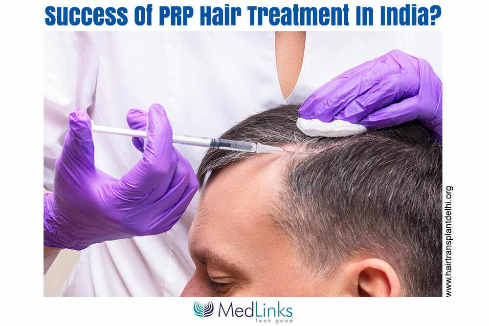 What Is The Cost And Success Of PRP Hair Treatment In India?
