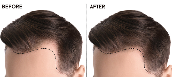 How Perfect-i Technique can ensure a Perfect Hairline?