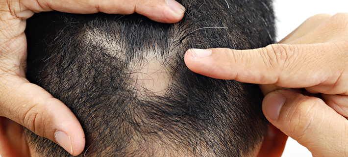 Scarring Alopecia - Symptoms, Causes and Treatments
