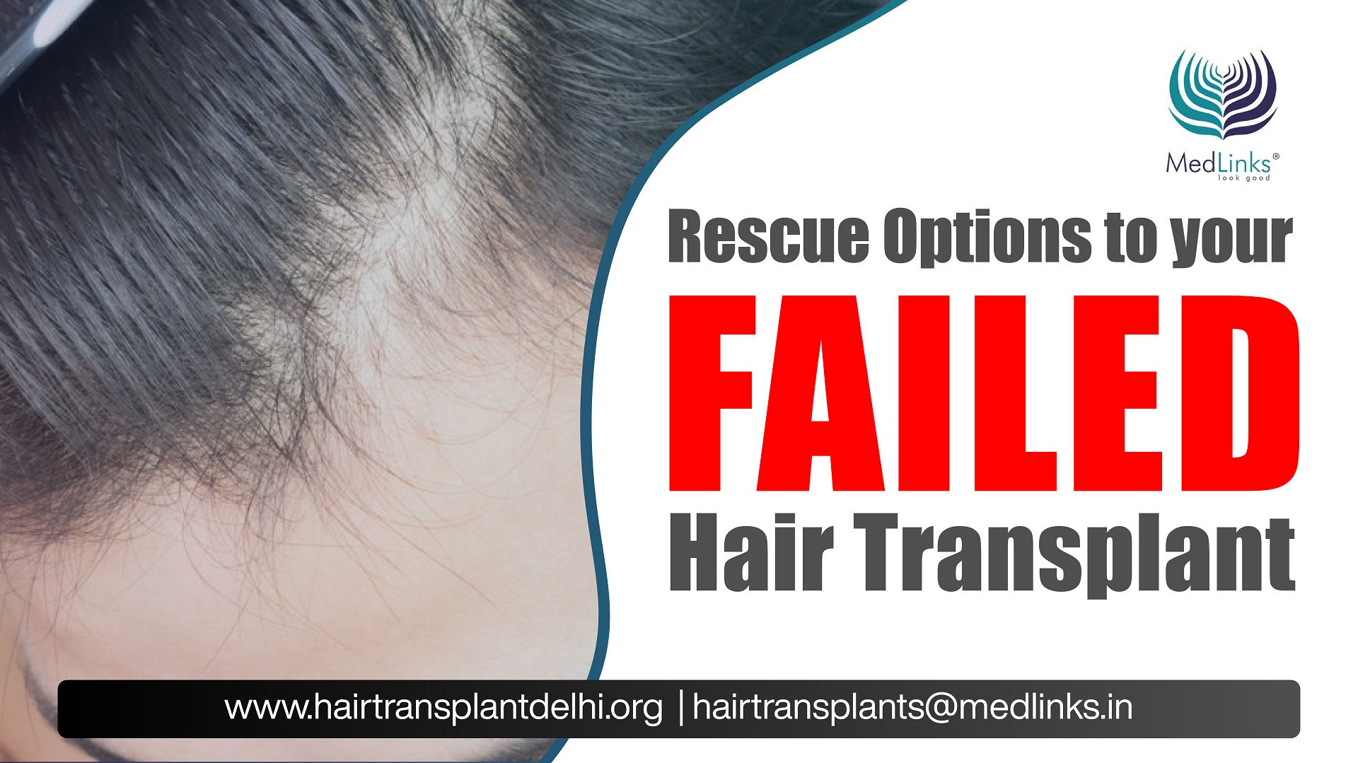 What to do after a Failed Hair Transplant?
