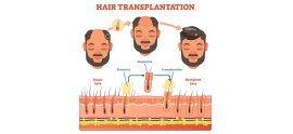 How to Speed Up your Hair Growth after Hair Transplant Surgery