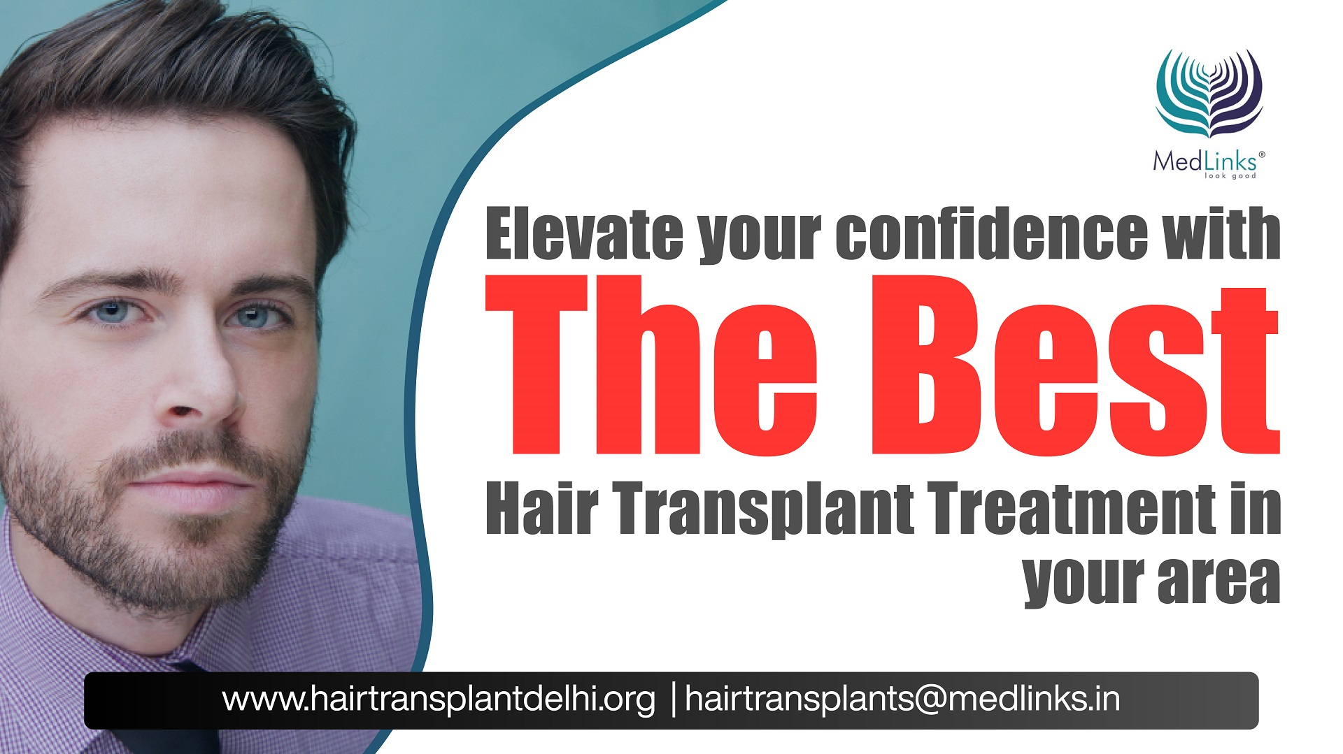 What are the criteria to choose the Best Hair Transplant Clinic in Delhi NCR?