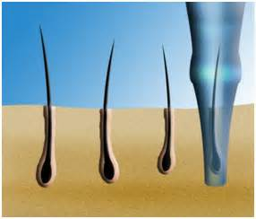 Evolution and Development Path of Hair Transplant Methods