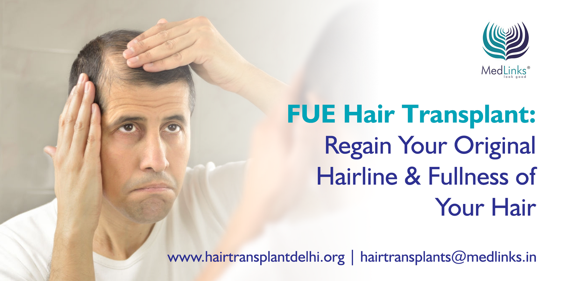 FUE Hair Transplant: Is it the best option?
