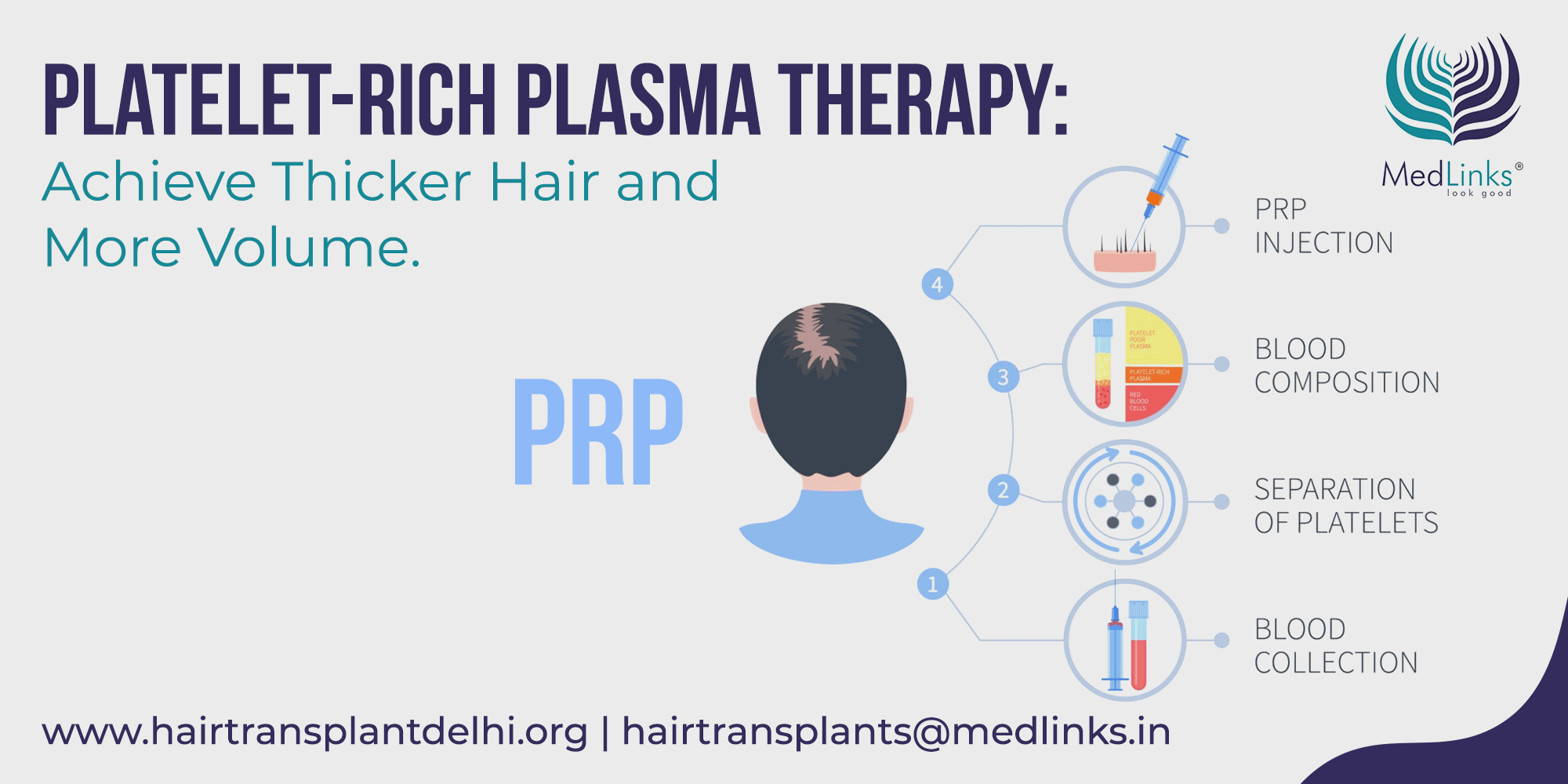 PRP for Hair Loss: Myth or Reality? Benefits, Cost & Side Effects