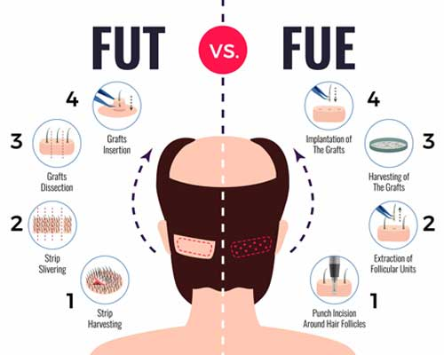 hair transplant lifespan