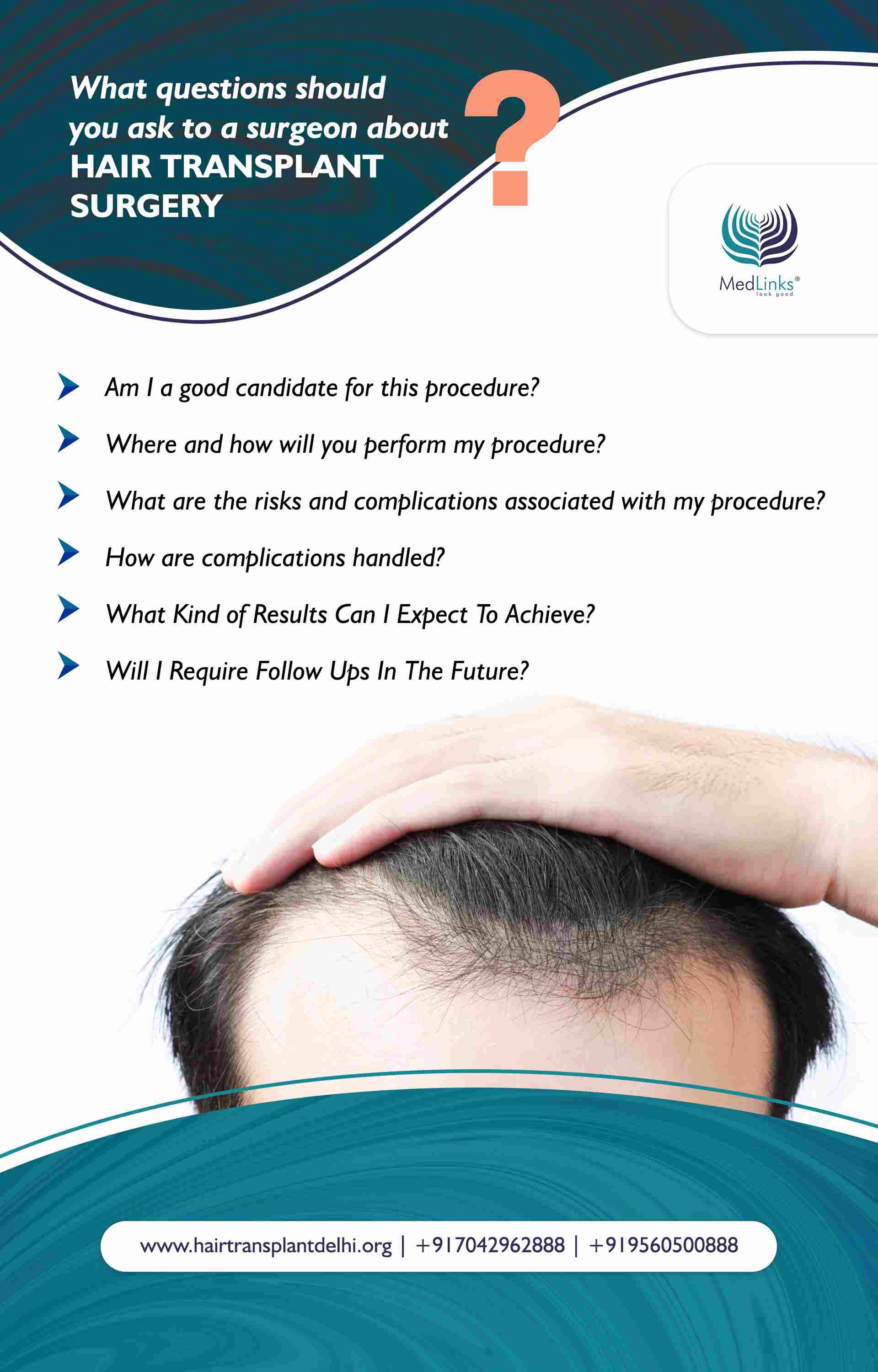 best hair transplant clinic in India